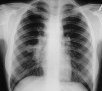 Рентген грудной клетки в КДЦ 24 в Зеленограде